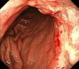 噴門部進行胃がん・通常観察