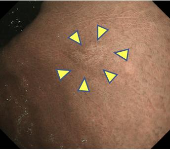 微小胃がん・NBI観察