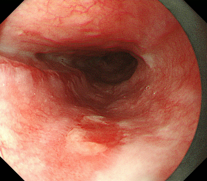 Early esophageal cancer