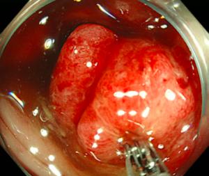進行大腸がん・生検検査