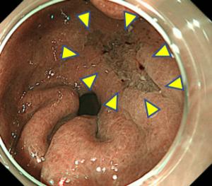 早期胃がん・NBI観察