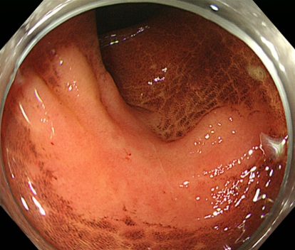 Early colonic cancer